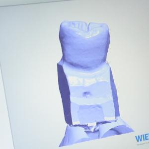 患者様の歯型をスキャナーで読み込む